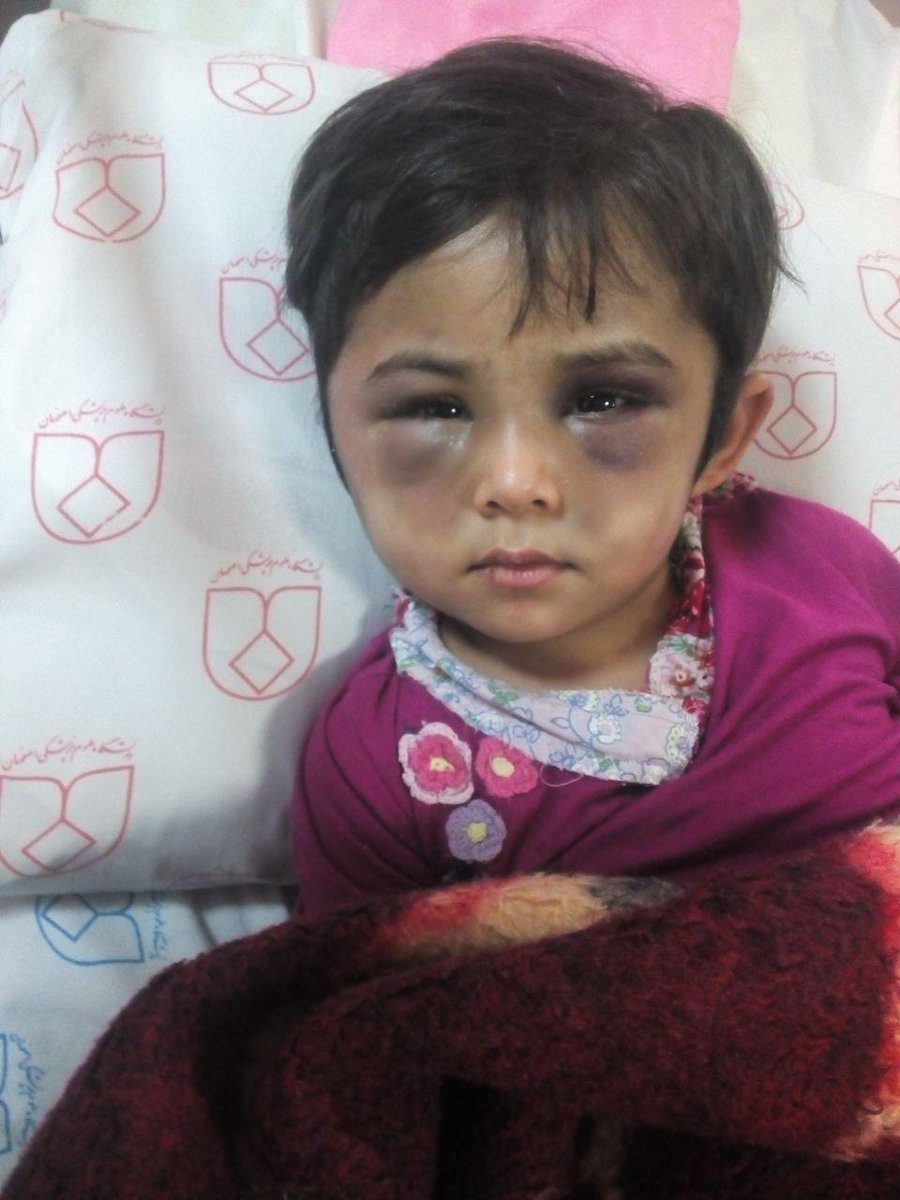 آزار کودک«افغانستانی» در خمینی شهر